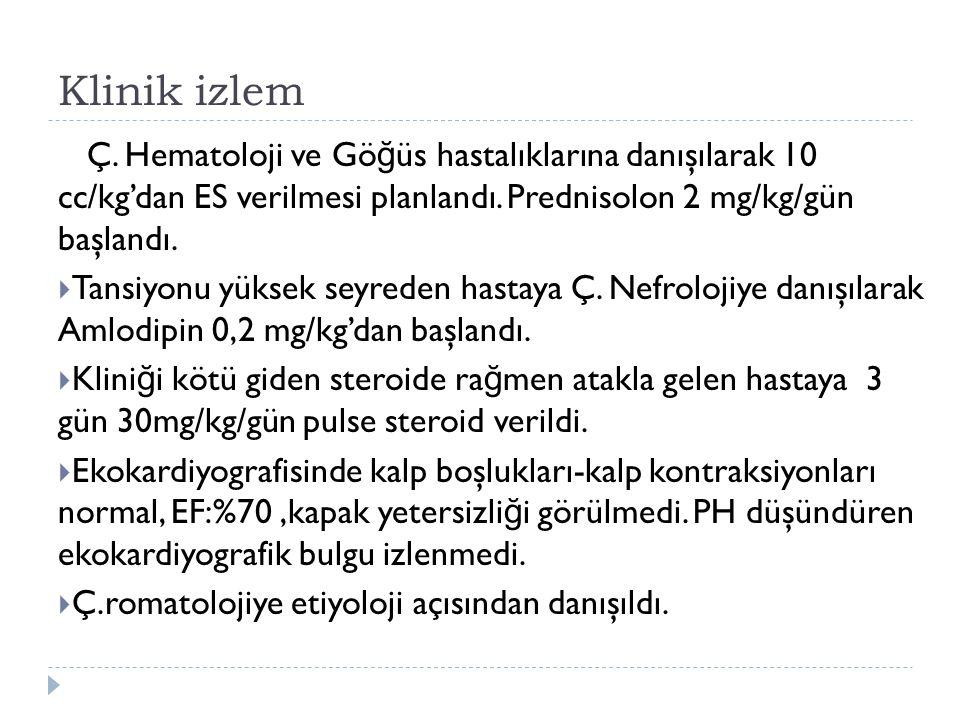Klinik izlem Ç. Hematoloji ve Gö ğ üs hastalıklarına danışılarak 10 cc/kg'dan ES verilmesi planlandı. Prednisolon 2 mg/kg/gün başlandı.  Tansiyonu yü