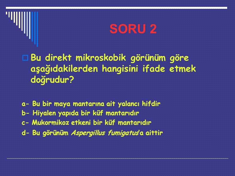 SORU 2  Bu direkt mikroskobik görünüm göre aşağıdakilerden hangisini ifade etmek doğrudur? a- Bu bir maya mantarına ait yalancı hifdir b- Hiyalen yap