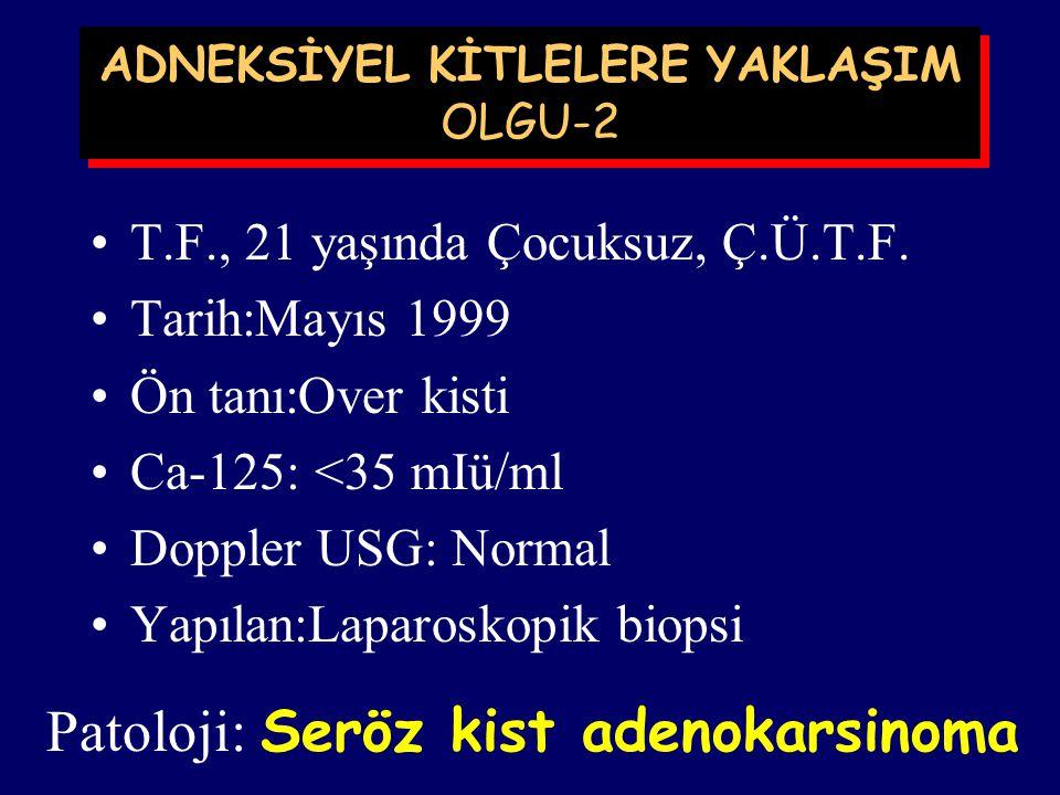 ADNEKSİYEL KİTLELERE YAKLAŞIM OLGU-1 N.K, 24 yaşında, 2 çocuklu, MERSİN, Tarih: Nisan 1999 Ön tanı: Over kisti Ca-125: ? Doppler USG:? Yapılan:Laparos