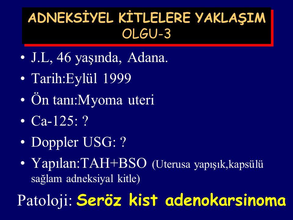 T.F., 21 yaşında Çocuksuz, Ç.Ü.T.F. Tarih:Mayıs 1999 Ön tanı:Over kisti Ca-125: <35 mIü/ml Doppler USG: Normal Yapılan:Laparoskopik biopsi ADNEKSİYEL