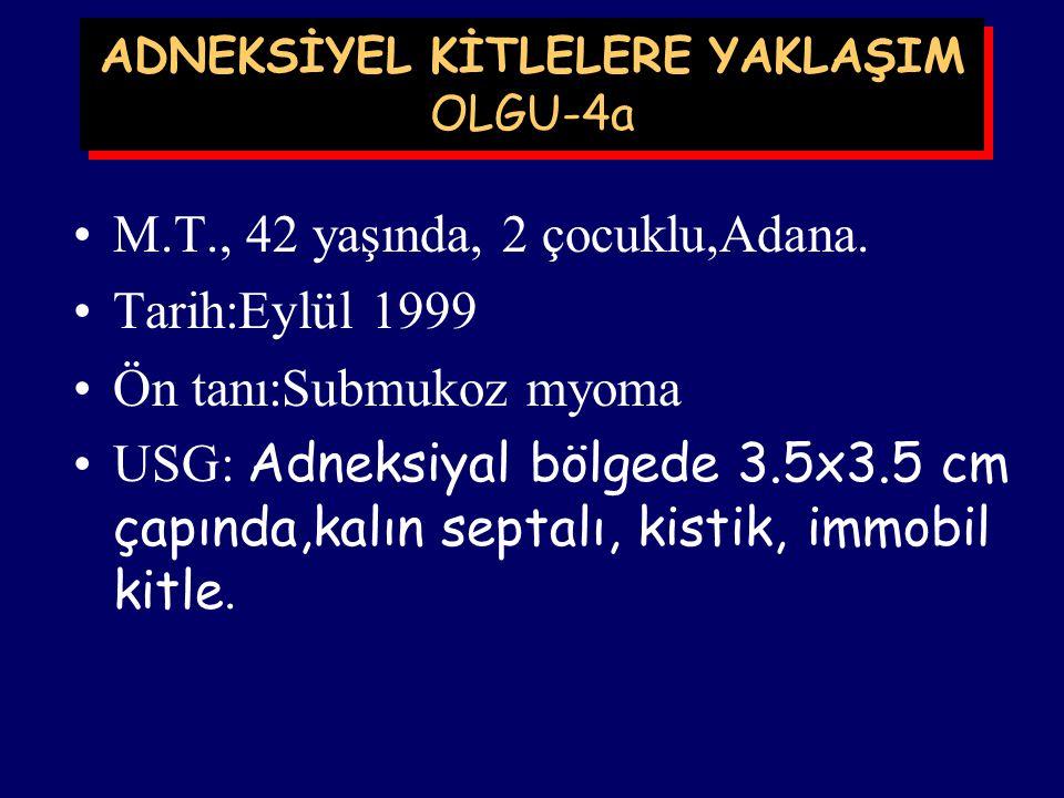 ADNEKSİYEL KİTLELERE YAKLAŞIM OLGU-3 J.L, 46 yaşında, Adana. Tarih:Eylül 1999 Ön tanı:Myoma uteri Ca-125: ? Doppler USG: ? Yapılan:TAH+BSO (Uterusa ya