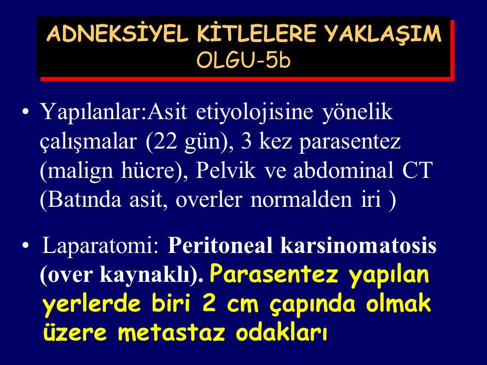 ADNEKSİYEL KİTLELERE YAKLAŞIM OLGU-5a M.T., 56 yaşında, Gaziantep. (Doktor annesi) Tarih:Mayıs 1999 Ön tanı:Asit,Etiyoloji? Ca-125: 115 mIü/ml Doppler