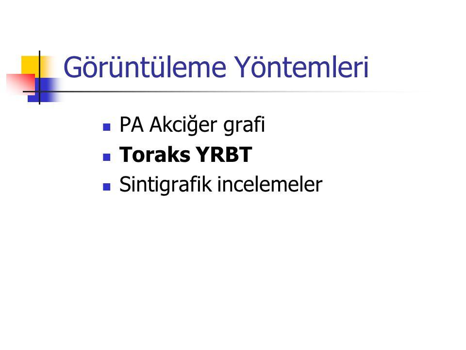 Görüntüleme Yöntemleri PA Akciğer grafi Toraks YRBT Sintigrafik incelemeler