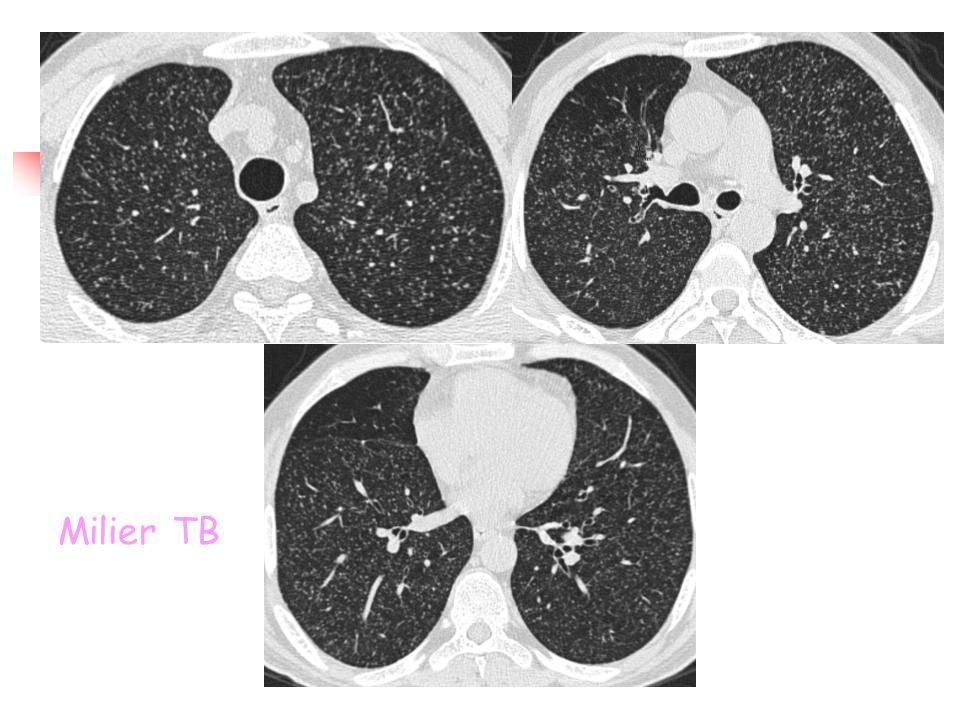 Milier TB