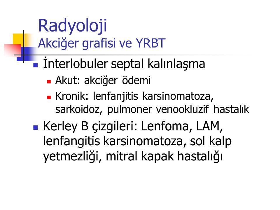 Radyoloji Akciğer grafisi ve YRBT İnterlobuler septal kalınlaşma Akut: akciğer ödemi Kronik: lenfanjitis karsinomatoza, sarkoidoz, pulmoner venookluzi