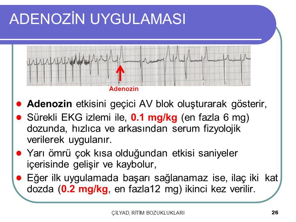 ÇİLYAD, RİTİM BOZUKLUKLARI 26 ADENOZİN UYGULAMASI Adenozin etkisini geçici AV blok oluşturarak gösterir, Sürekli EKG izlemi ile, 0.1 mg/kg (en fazla 6