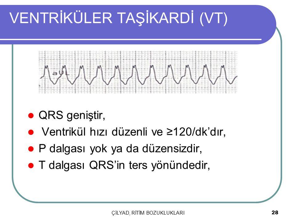 ÇİLYAD, RİTİM BOZUKLUKLARI 28 VENTRİKÜLER TAŞİKARDİ (VT) QRS geniştir, Ventrikül hızı düzenli ve ≥120/dk'dır, P dalgası yok ya da düzensizdir, T dalga