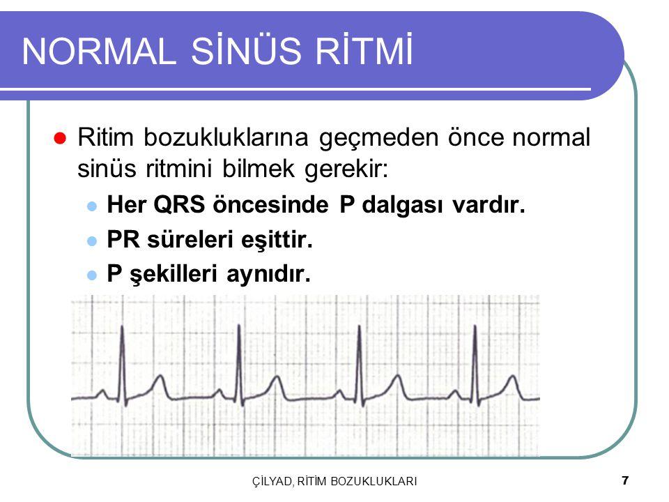 ÇİLYAD, RİTİM BOZUKLUKLARI 7 NORMAL SİNÜS RİTMİ Ritim bozukluklarına geçmeden önce normal sinüs ritmini bilmek gerekir: Her QRS öncesinde P dalgası va