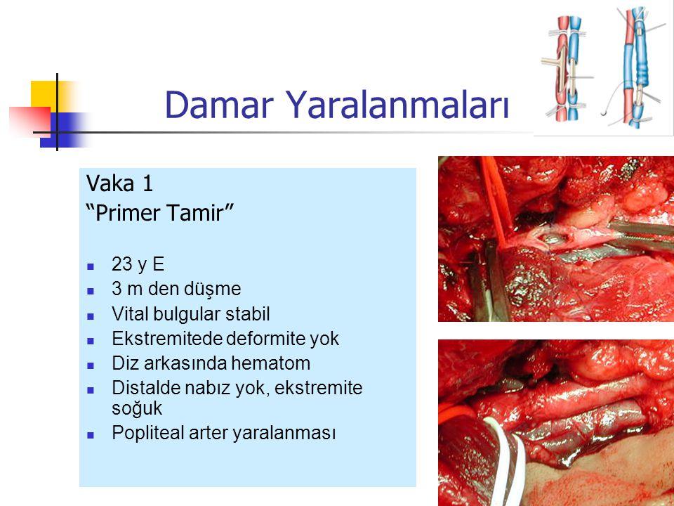 Vaka 1 Primer Tamir 23 y E 3 m den düşme Vital bulgular stabil Ekstremitede deformite yok Diz arkasında hematom Distalde nabız yok, ekstremite soğuk Popliteal arter yaralanması Damar Yaralanmaları