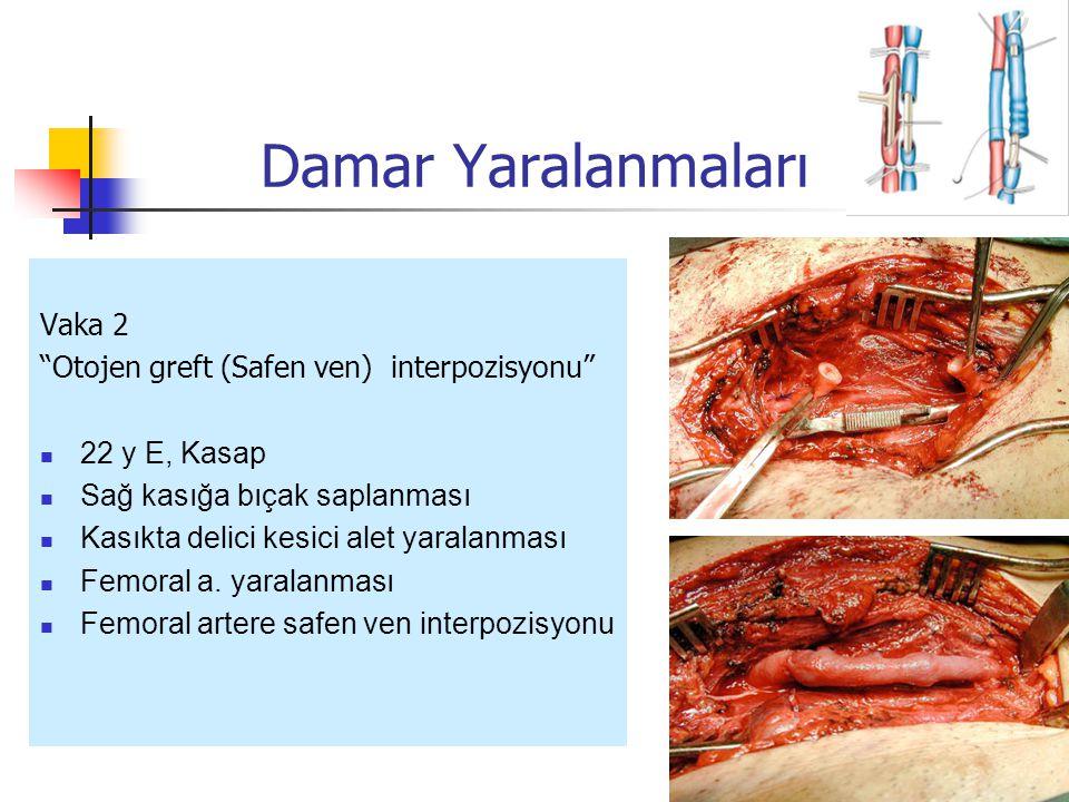 Vaka 2 Otojen greft (Safen ven) interpozisyonu 22 y E, Kasap Sağ kasığa bıçak saplanması Kasıkta delici kesici alet yaralanması Femoral a.