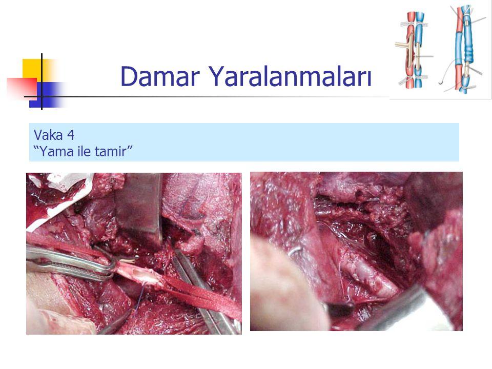 Vaka 4 Yama ile tamir Damar Yaralanmaları
