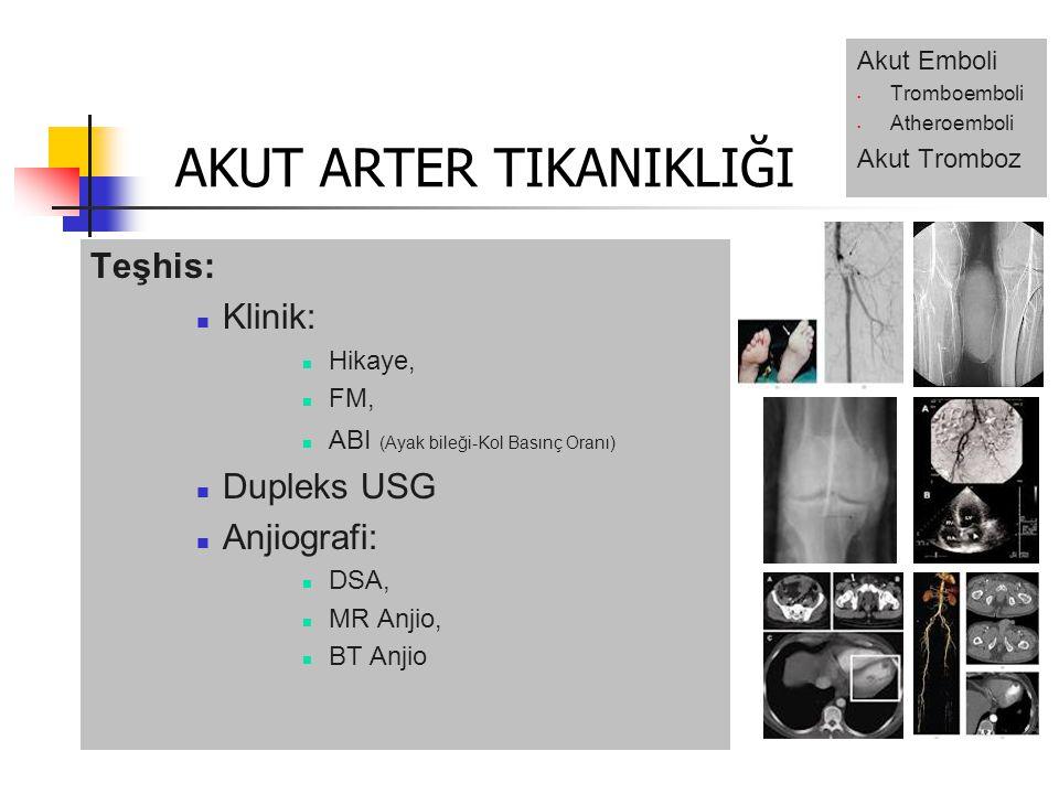 Teşhis: Klinik: Hikaye, FM, ABI (Ayak bileği-Kol Basınç Oranı) Dupleks USG Anjiografi: DSA, MR Anjio, BT Anjio AKUT ARTER TIKANIKLIĞI Akut Emboli Tromboemboli Atheroemboli Akut Tromboz