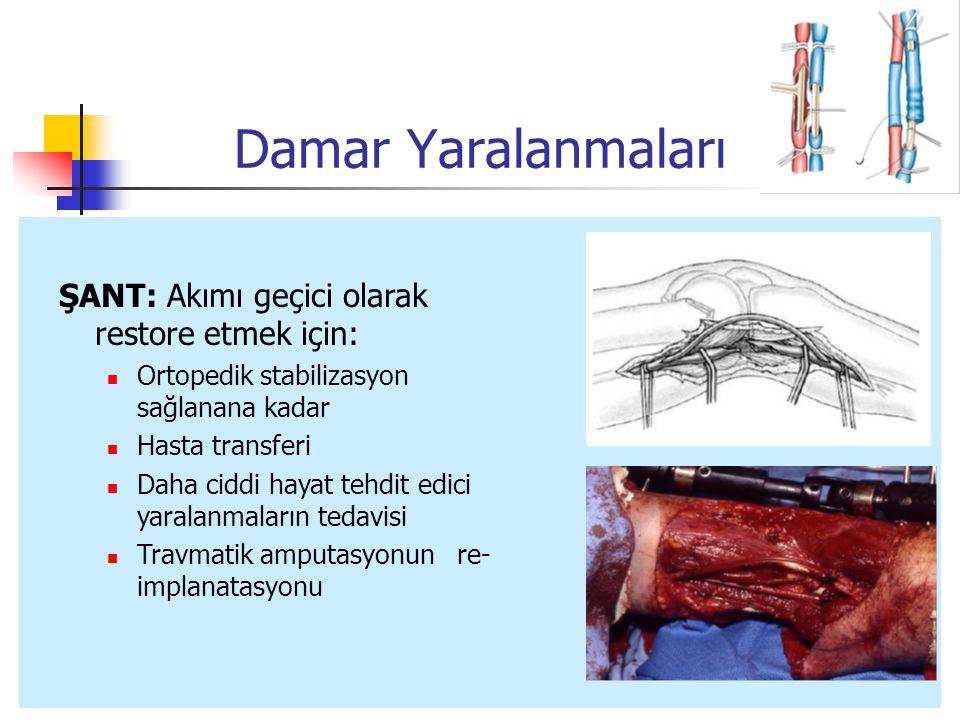 ŞANT: Akımı geçici olarak restore etmek için: Ortopedik stabilizasyon sağlanana kadar Hasta transferi Daha ciddi hayat tehdit edici yaralanmaların tedavisi Travmatik amputasyonun re- implanatasyonu
