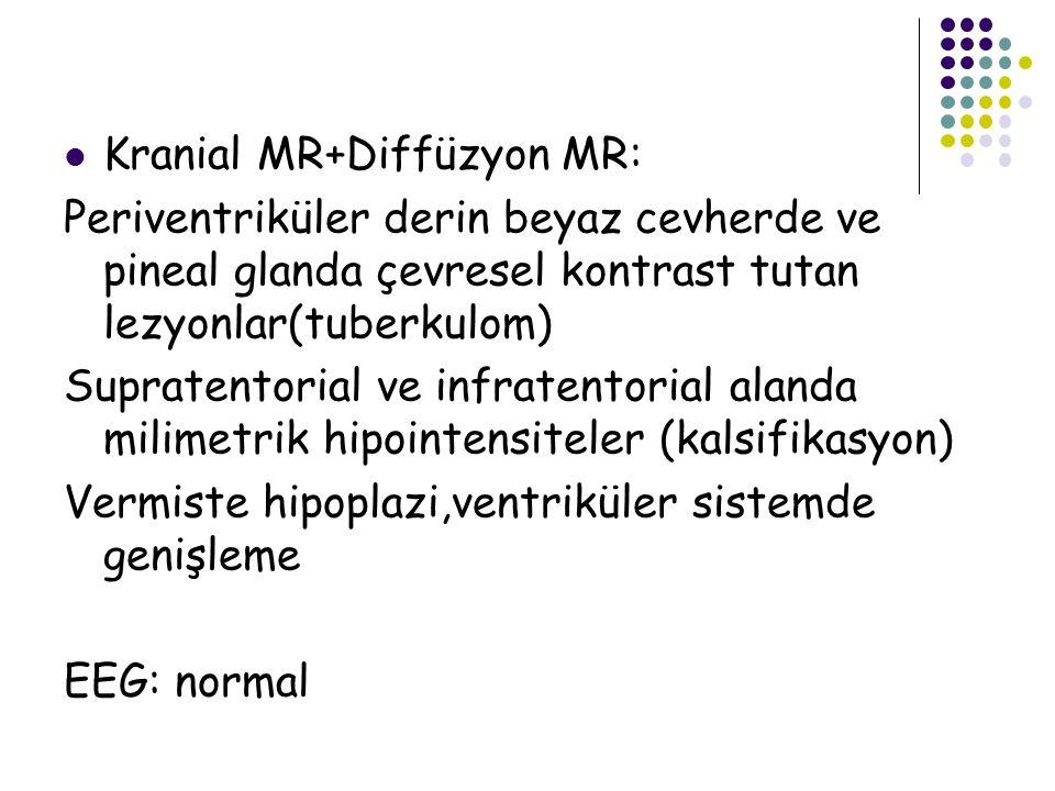 Kranial MR+Diffüzyon MR: Periventriküler derin beyaz cevherde ve pineal glanda çevresel kontrast tutan lezyonlar(tuberkulom) Supratentorial ve infrate