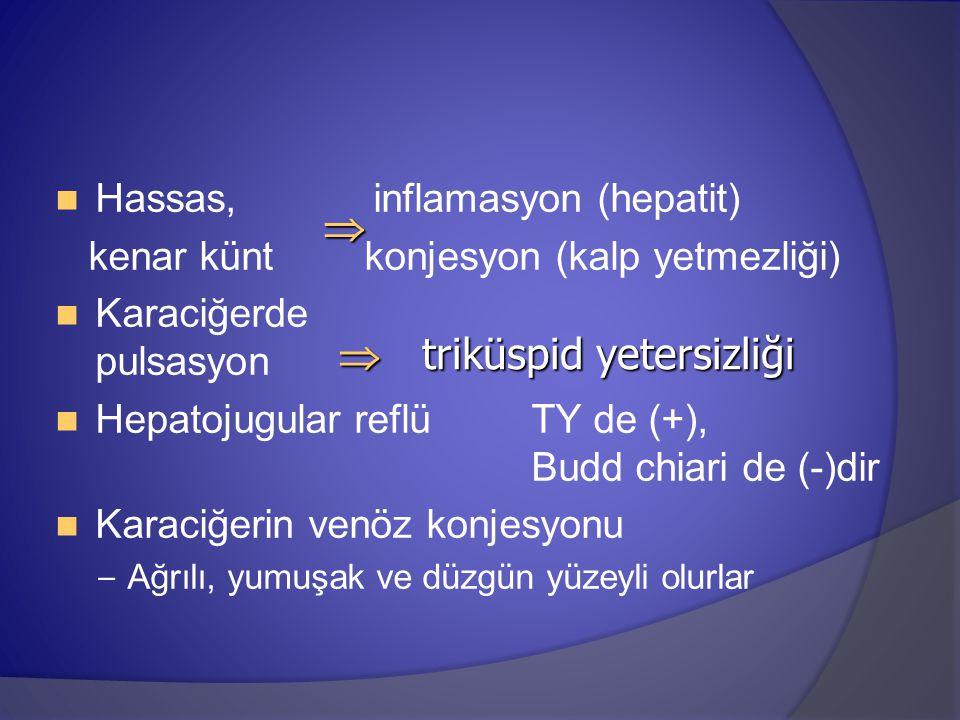 Hassas, inflamasyon (hepatit) kenar künt konjesyon (kalp yetmezliği) Karaciğerde pulsasyon Hepatojugular reflü TY de (+), Budd chiari de (-)dir Karaci