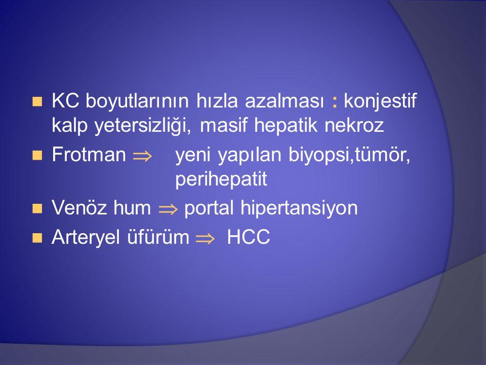 KC boyutlarının hızla azalması : konjestif kalp yetersizliği, masif hepatik nekroz Frotman  yeni yapılan biyopsi,tümör, perihepatit Venöz hum  portal hipertansiyon Arteryel üfürüm  HCC
