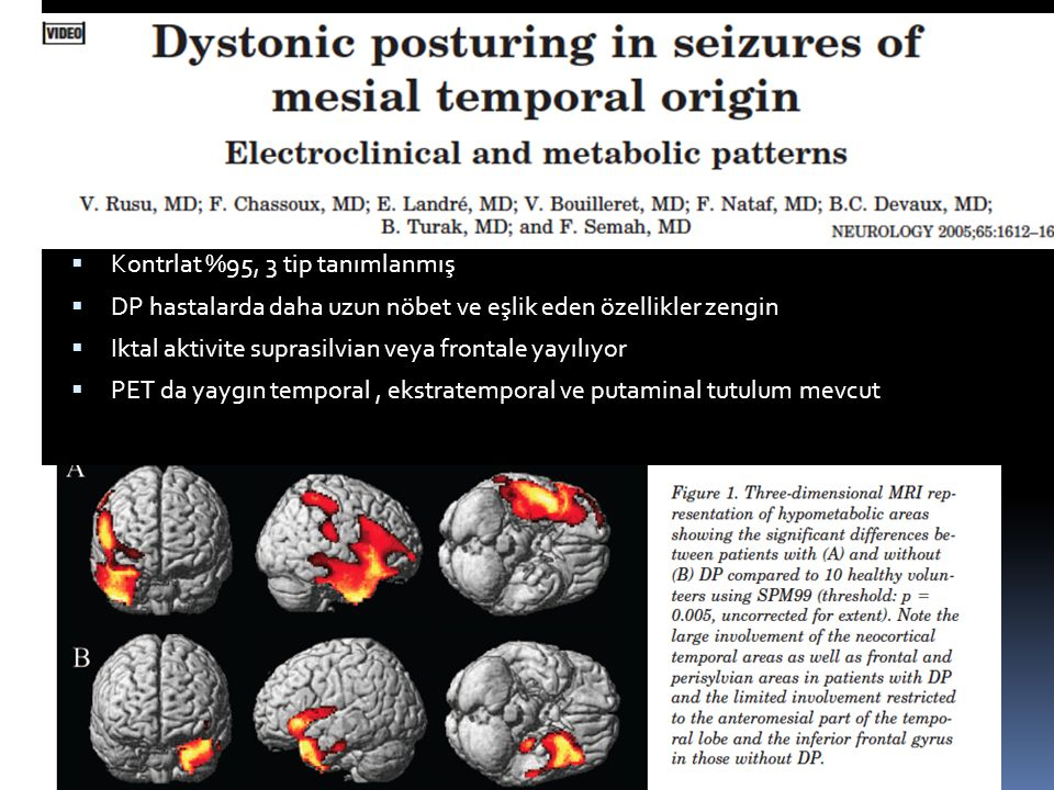 Pozitif motor fenomen  Kontrlat %95, 3 tip tanımlanmış  DP hastalarda daha uzun nöbet ve eşlik eden özellikler zengin  Iktal aktivite suprasilvian