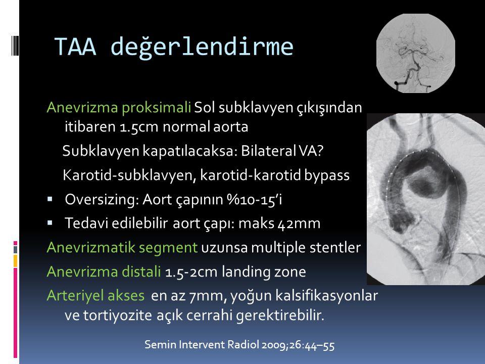 TAA değerlendirme Anevrizma proksimali Sol subklavyen çıkışından itibaren 1.5cm normal aorta Subklavyen kapatılacaksa: Bilateral VA.
