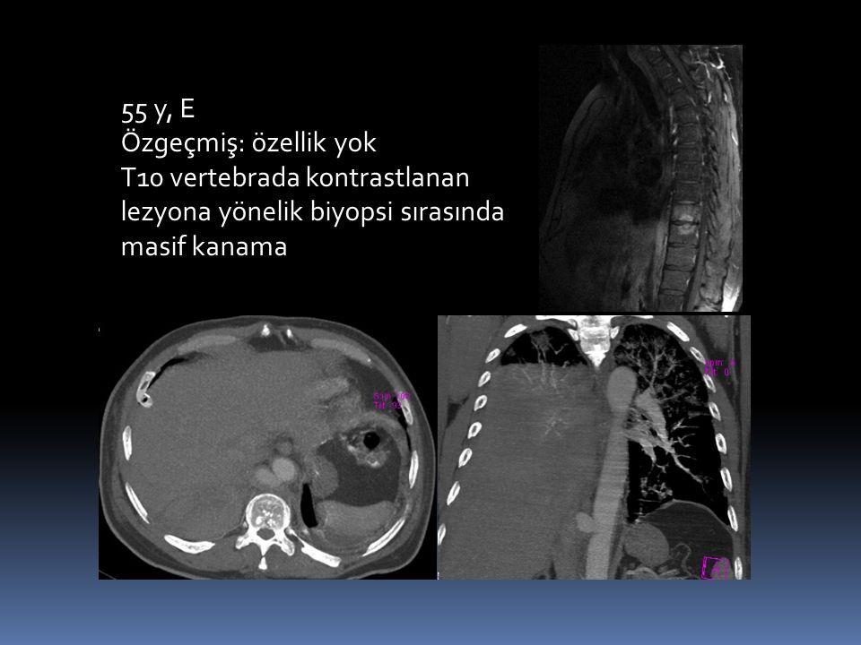 55 y, E Özgeçmiş: özellik yok T10 vertebrada kontrastlanan lezyona yönelik biyopsi sırasında masif kanama