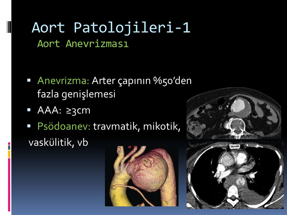 Aort Patolojileri-1 Aort Anevrizması  Anevrizma: Arter çapının %50'den fazla genişlemesi  AAA: ≥3cm  Psödoanev: travmatik, mikotik, vaskülitik, vb
