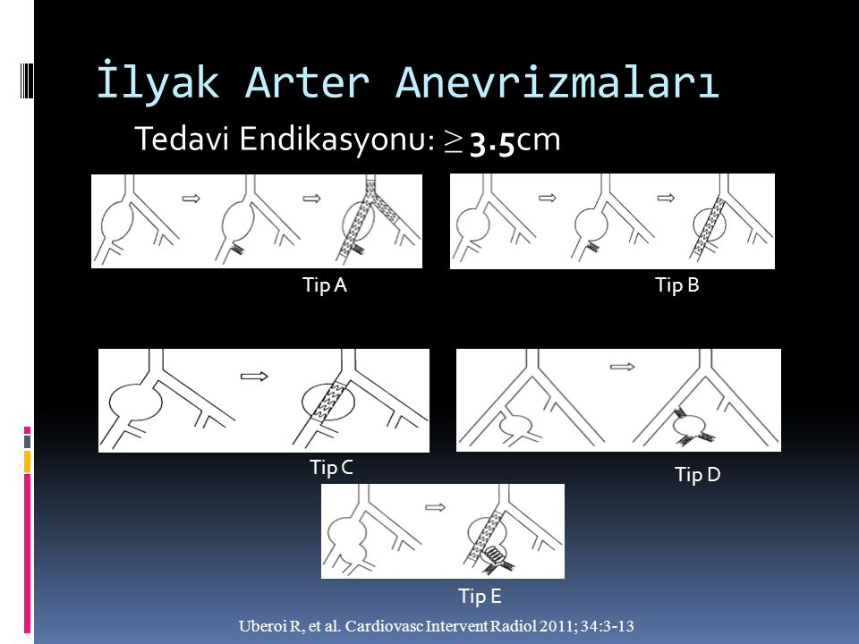 İlyak Arter Anevrizmaları Tedavi Endikasyonu: ≥ 3.5cm Uberoi R, et al. Cardiovasc Intervent Radiol 2011; 34:3-13 Tip ATip B Tip C Tip D Tip E