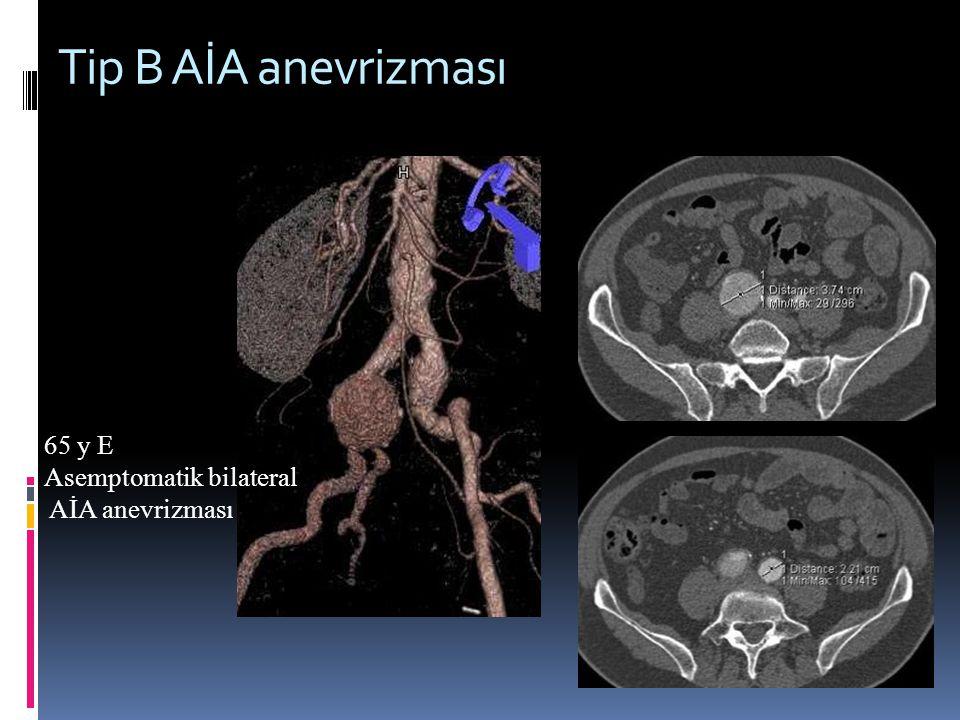 Tip B AİA anevrizması 65 y E Asemptomatik bilateral AİA anevrizması
