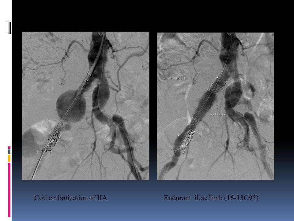 Coil embolization of IIAEndurant iliac limb (16-13C95)
