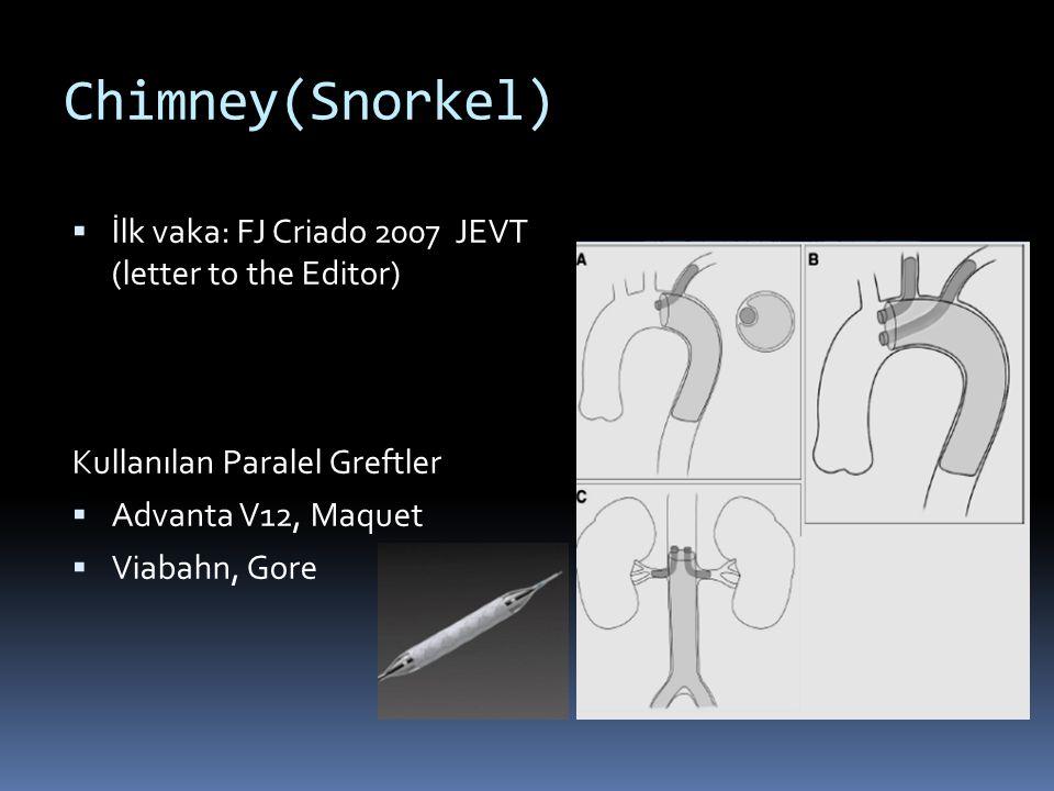Chimney(Snorkel)  İlk vaka: FJ Criado 2007 JEVT (letter to the Editor) Kullanılan Paralel Greftler  Advanta V12, Maquet  Viabahn, Gore