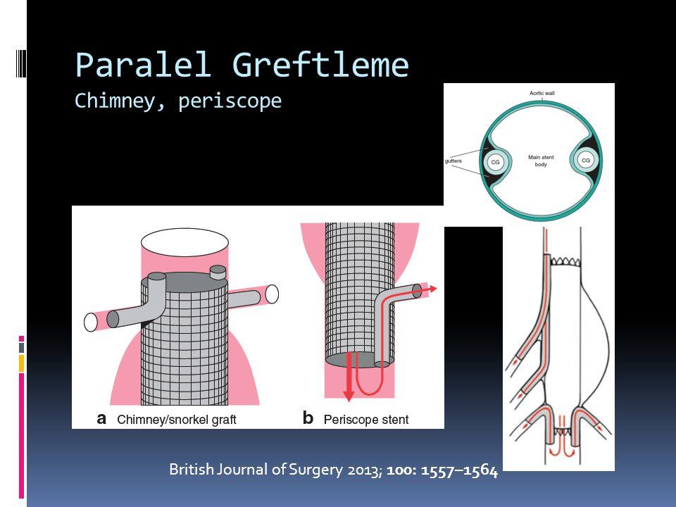 Paralel Greftleme Chimney, periscope British Journal of Surgery 2013; 100: 1557–1564