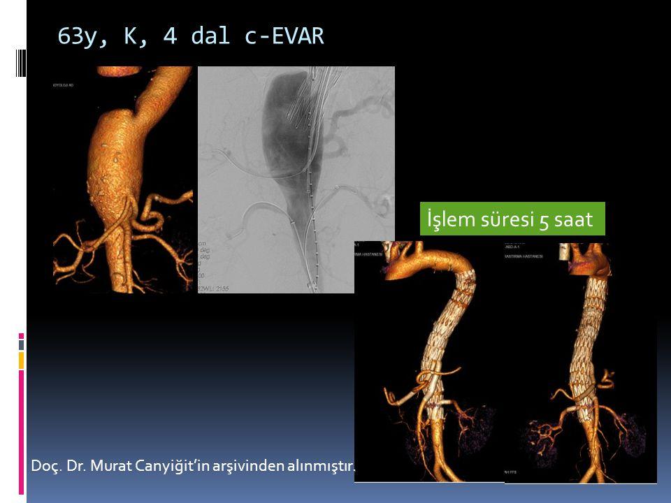 63y, K, 4 dal c-EVAR Doç. Dr. Murat Canyiğit'in arşivinden alınmıştır. İşlem süresi 5 saat