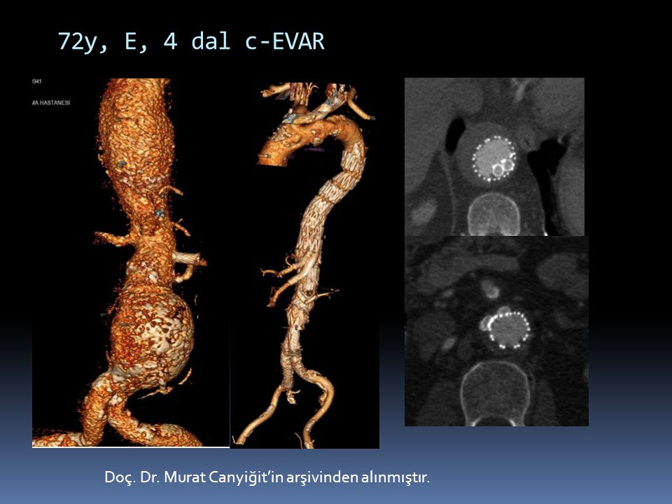 Doç. Dr. Murat Canyiğit'in arşivinden alınmıştır. 72y, E, 4 dal c-EVAR