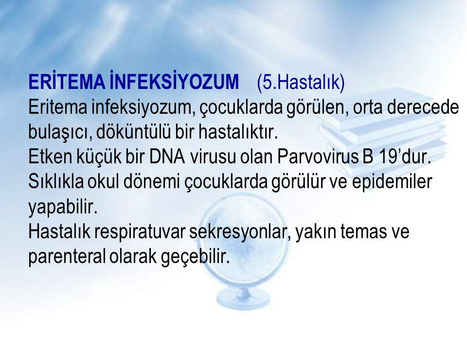 ERİTEMA İNFEKSİYOZUM (5.Hastalık) Eritema infeksiyozum, çocuklarda görülen, orta derecede bulaşıcı, döküntülü bir hastalıktır. Etken küçük bir DNA vir