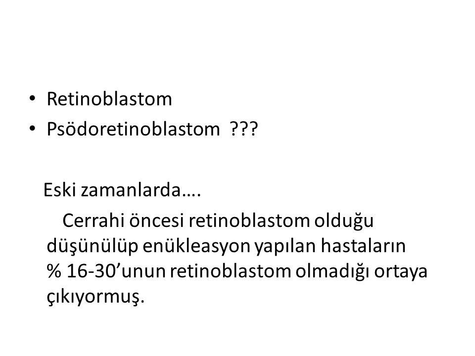 Retinoblastom Psödoretinoblastom ??? Eski zamanlarda…. Cerrahi öncesi retinoblastom olduğu düşünülüp enükleasyon yapılan hastaların % 16-30'unun retin
