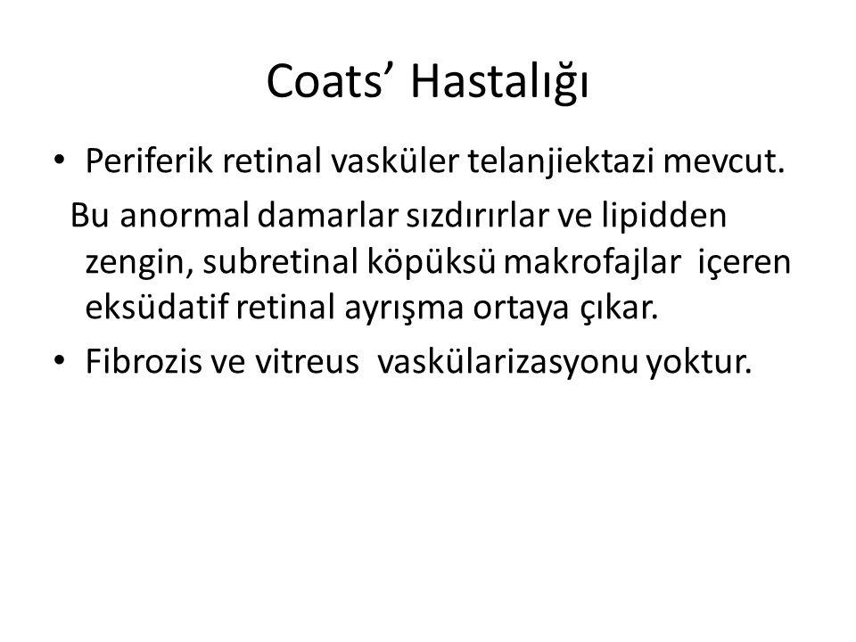 Coats' Hastalığı Periferik retinal vasküler telanjiektazi mevcut. Bu anormal damarlar sızdırırlar ve lipidden zengin, subretinal köpüksü makrofajlar i