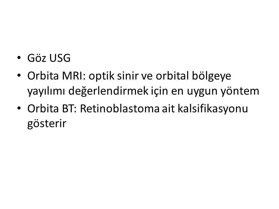 Göz USG Orbita MRI: optik sinir ve orbital bölgeye yayılımı değerlendirmek için en uygun yöntem Orbita BT: Retinoblastoma ait kalsifikasyonu gösterir