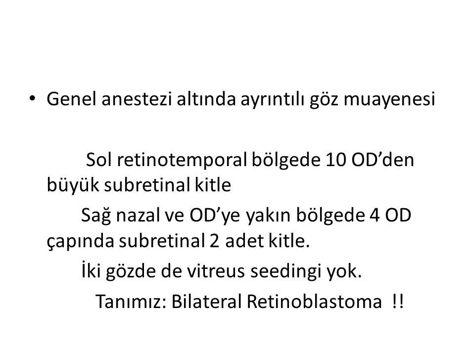 Genel anestezi altında ayrıntılı göz muayenesi Sol retinotemporal bölgede 10 OD'den büyük subretinal kitle Sağ nazal ve OD'ye yakın bölgede 4 OD çapın