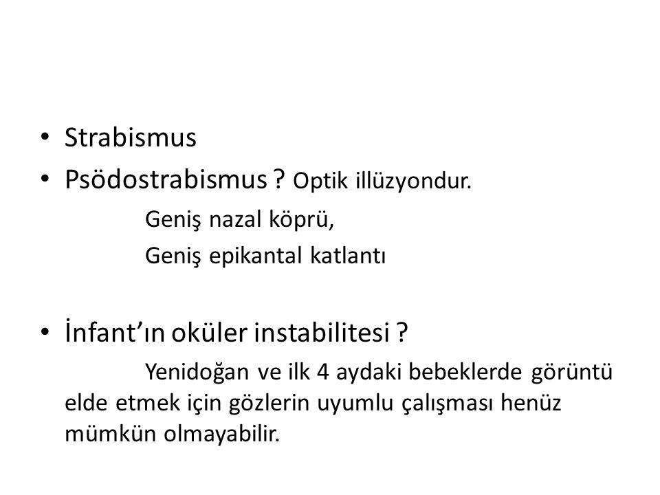 Strabismus Psödostrabismus ? Optik illüzyondur. Geniş nazal köprü, Geniş epikantal katlantı İnfant'ın oküler instabilitesi ? Yenidoğan ve ilk 4 aydaki