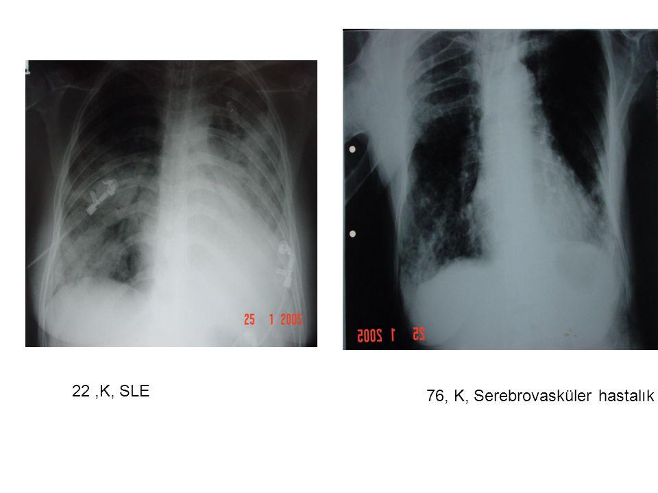 22,K, SLE 76, K, Serebrovasküler hastalık