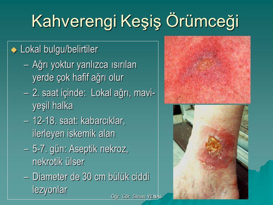 Öğr. Gör. Sinan YENAL Kahverengi Keşiş Örümceği  Lokal bulgu/belirtiler –Ağrı yoktur yanlızca ısırılan yerde çok hafif ağrı olur –2. saat içinde: Lok