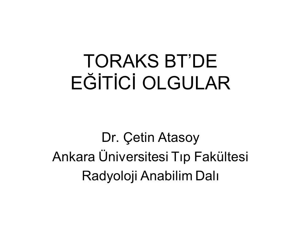 TORAKS BT'DE EĞİTİCİ OLGULAR Dr. Çetin Atasoy Ankara Üniversitesi Tıp Fakültesi Radyoloji Anabilim Dalı