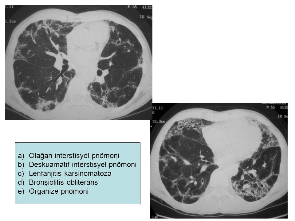 a)Olağan interstisyel pnömoni b)Deskuamatif interstisyel pnömoni c)Lenfanjitis karsinomatoza d)Bronşiolitis obliterans e)Organize pnömoni