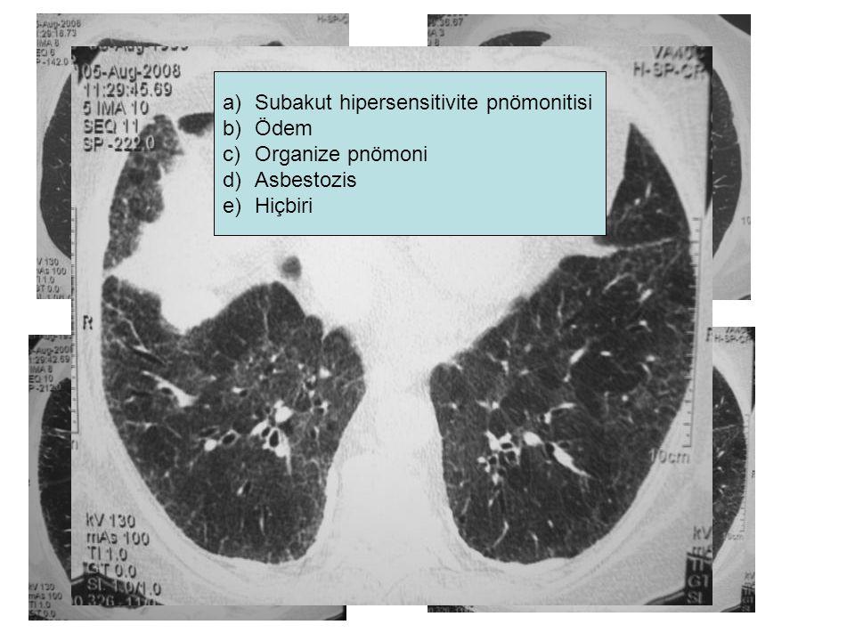 a)Subakut hipersensitivite pnömonitisi b)Ödem c)Organize pnömoni d)Asbestozis e)Hiçbiri