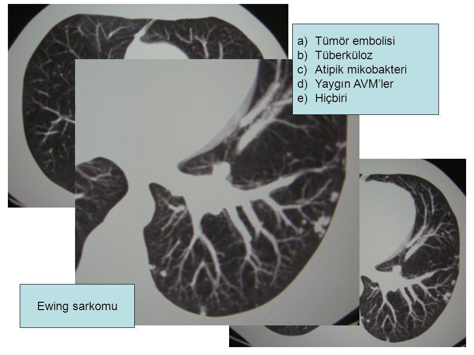Ewing sarkomu a)Tümör embolisi b)Tüberküloz c)Atipik mikobakteri d)Yaygın AVM'ler e)Hiçbiri