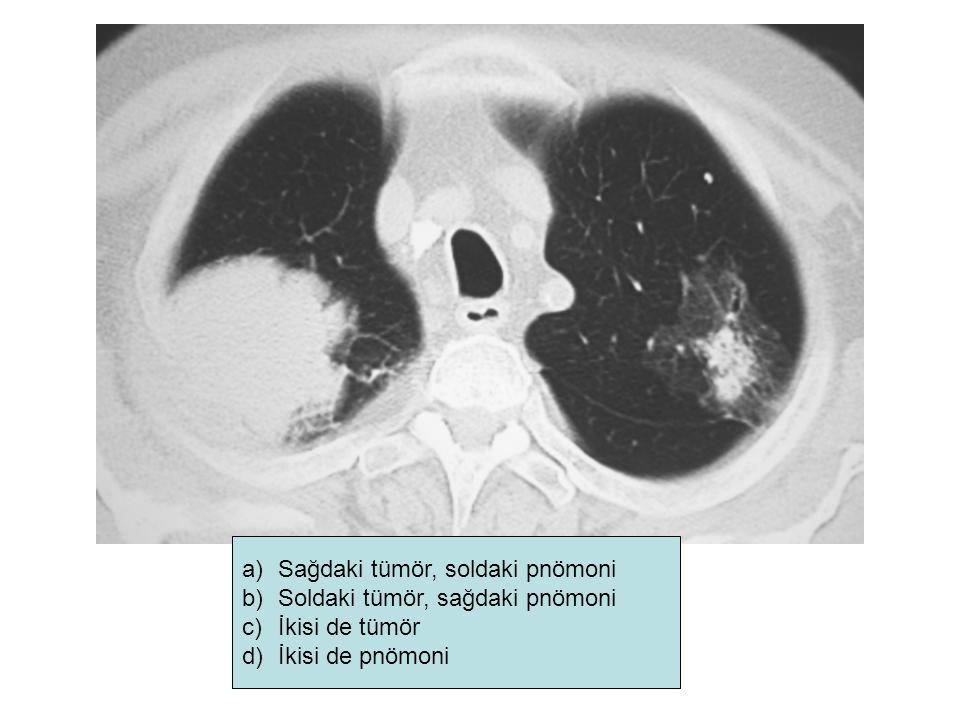 a)Sağdaki tümör, soldaki pnömoni b)Soldaki tümör, sağdaki pnömoni c)İkisi de tümör d)İkisi de pnömoni