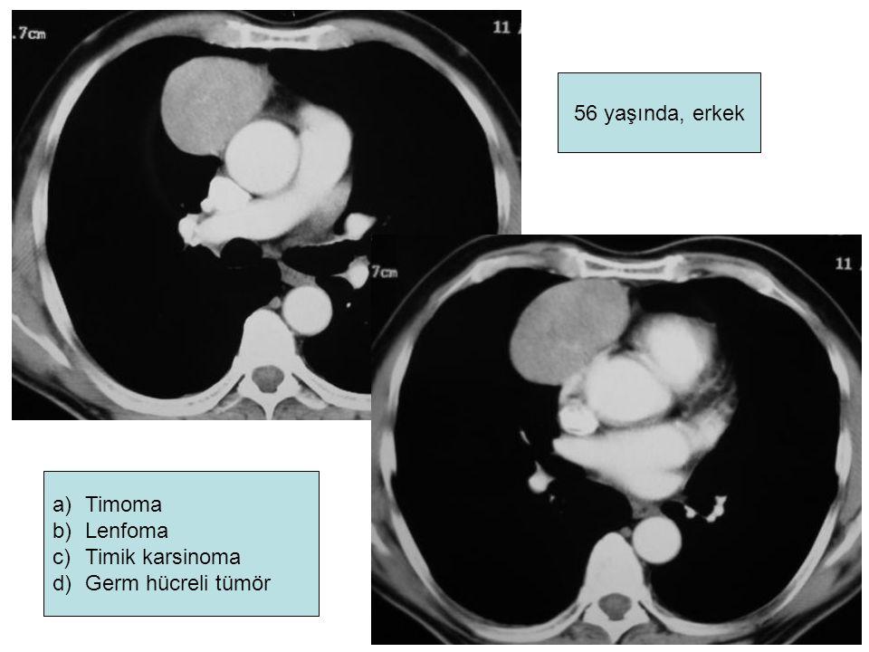a)Timoma b)Lenfoma c)Timik karsinoma d)Germ hücreli tümör 56 yaşında, erkek