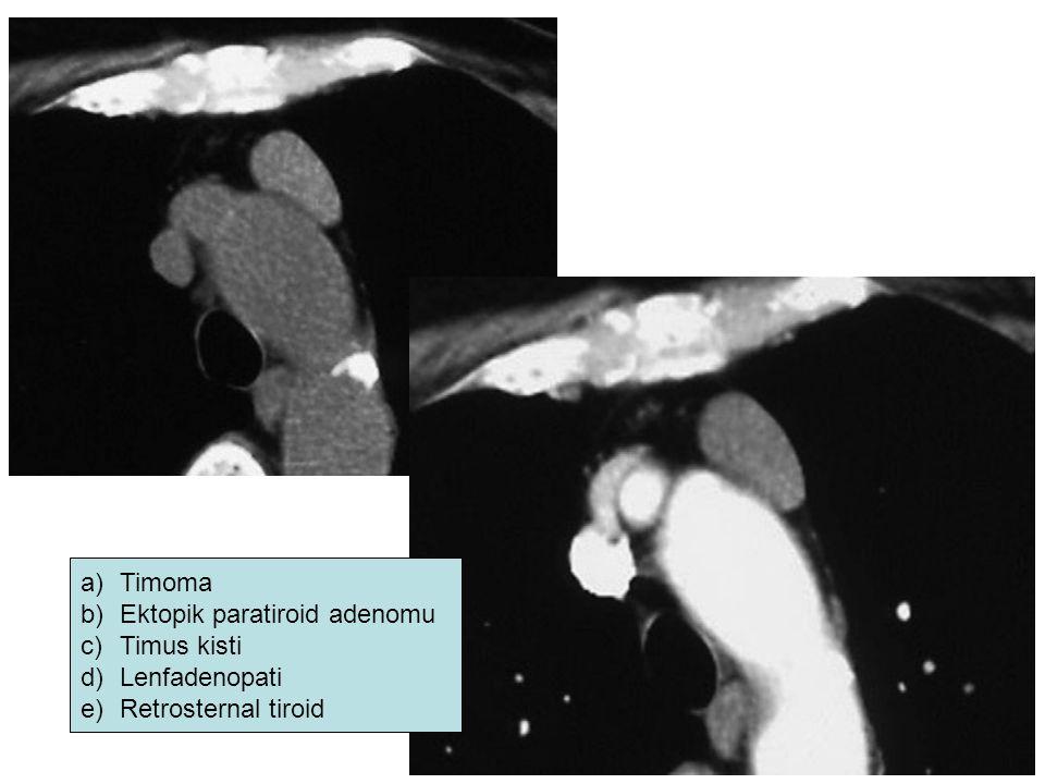 a)Timoma b)Ektopik paratiroid adenomu c)Timus kisti d)Lenfadenopati e)Retrosternal tiroid
