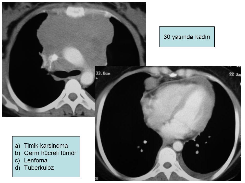 30 yaşında kadın a)Timik karsinoma b)Germ hücreli tümör c)Lenfoma d)Tüberküloz
