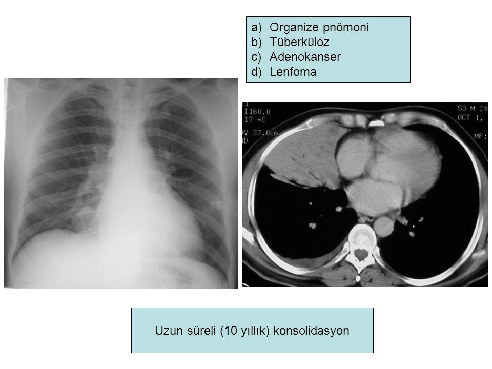 Uzun süreli (10 yıllık) konsolidasyon a)Organize pnömoni b)Tüberküloz c)Adenokanser d)Lenfoma