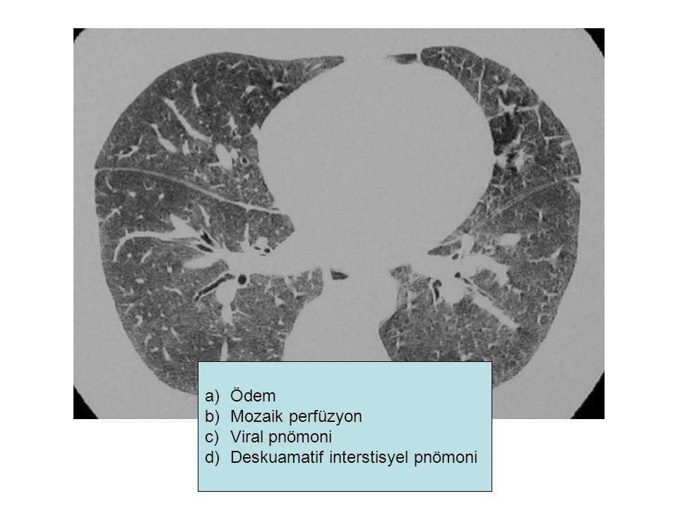 a)Ödem b)Mozaik perfüzyon c)Viral pnömoni d)Deskuamatif interstisyel pnömoni