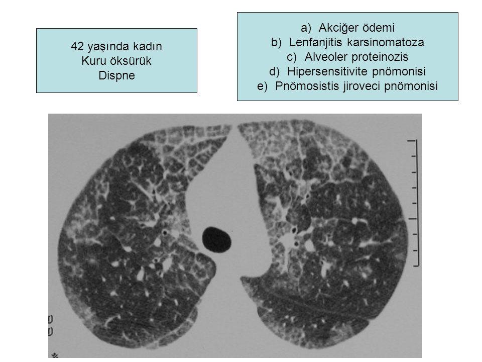 42 yaşında kadın Kuru öksürük Dispne a)Akciğer ödemi b)Lenfanjitis karsinomatoza c)Alveoler proteinozis d)Hipersensitivite pnömonisi e)Pnömosistis jir